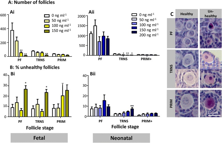 Effect of etoposide on different stages of follicle development. Number and health of primordial (PF), transitional (TRNS) and primary (PRIM) follicles was determined in cultured mouse ovaries exposed to etoposide prior to (fetal ovaries: Ai , Bi ); or after (neonatal ovaries: Aii , Bii ) follicle formation. Figure shows: follicle distribution ( Ai , Aii ); and the percentage of follicles assessed as unhealthy for each follicle stage ( Bi , Bii ). c Photomicrographs of haemotoxylin and eosin stained cultured fetal and neonatal ovary sections, comparing healthy and unhealthy primordial, transitional and primary follicles. Bars denote mean ± SEM; n = 6 for all groups. Stars denote significant differences relative to control (* p