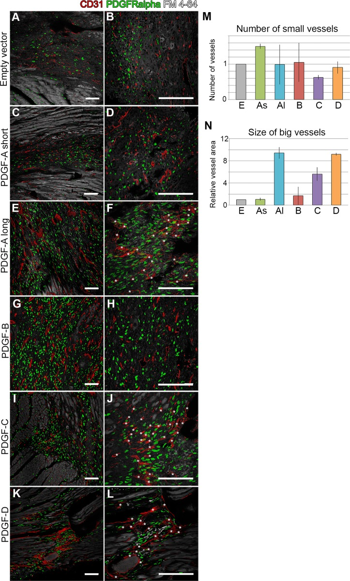 Angiogenic response in virus-induced scars. Endothelial <t>CD31</t> expression (red) marks blood vessels, PDGFRα in green and lipid membranes in grey. (Left column, A, C, E, G, I, K) Overview, showing changes in vessel morphology and density in PDGF induced scars. (Right column, B, D, F, H, J, L) Asterisks mark big vessels with altered morphology. (M) Quantification of small vessels in the different experimental groups, normalized to the empty vector control. (N) Quantification of vessel size (area of cross-sectioned vessels) for the different experimental groups, normalized to the empty vector control. Analyses were performed on 3–4 mice per experimental group. E = empty vector; As = PDGF-A short ; Al = PDGF-A long ; B = PDGF-B; C = PDGF-C; D = PDGF-D. Scale bars are 100 μm.