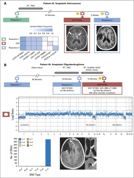 Tumor evolution in patients with primary brain tumors. (A) Spatial and temporal heterogeneity among samples obtained at diagnosis, at recurrence, and from cerebrospinal fluid (CSF) in patient 42 with recurrent glioblastoma. CSF cell-free DNA harbors a PTEN R130* mutation (variant allele frequency, 0.25), whereas resection 2 harbors a PIK3CA H1047R mutation (variant allele frequency, 0.441). (B) CSF molecular profile for patient 45 with anaplastic oligodendroglioma contains the IDH1 R132H mutation and 1p/19q deletion found in tissue resection 2 as well as 454 nonsilent somatic mutations. Four hundred forty-eight SNVs represent C > T/G > A mutations that demonstrate TMZ-induced mutagenesis. Carbo, carboplatin; CCNU, lomustine; rhuMAB VEGF, bevacuzumab; RT, radiotherapy; SNV, single nucleotide variant; TMZ, temozolomide.