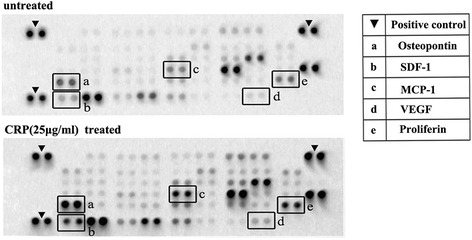CM with or without added CRP analyzed by antibody-based protein arrays. ADSCs were cultured with 10 % FBS low-glucose DMEM until 80–90 % confluence was reached and then incubated in DMEM for 24 hours. The CM was then collected for protein assays; increased proteins after CRP treatment are indicated with letters. CRP C-reactive protein, VEGF vascular endothelial growth factor