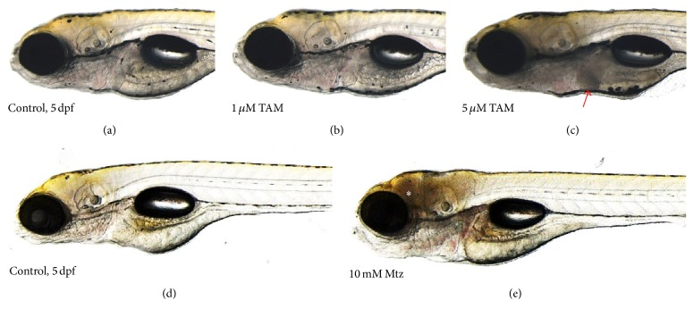 Tissue-specific cell death in the zebrafish larvae treated with tamoxifen (TAM) or metronidazole (Mtz). (a) 0.1% DMSO-treated control (5 dpf) and (b) 1 μ M and (c) 5 μ M TAM-treated zebrafish larvae. (d) 0.1% DMSO-treated control (2 dpf) and (e) 10 mM Mtz-treated zebrafish larvae. Liver-specific cell death was visualized by reduction of transparency in the TAM-treated zebrafish larvae (red arrow), compared to brain-specific cell death in the Mtz-treated larvae (white asterisk). For Mtz experiments, the transgenic zebrafish system, having neuron-specific nitroreductase expression, was used [ 20 ].