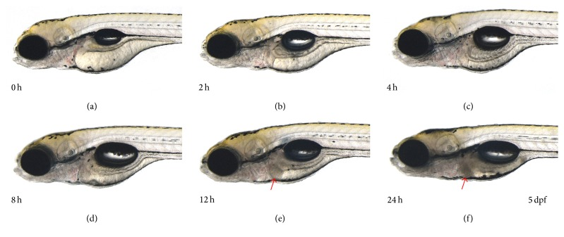 Duration-dependent changes induced by exposure to 5 μ M tamoxifen in zebrafish larvae. (a) Pretreatment at 4 dpf and (b) 2-hour exposure, (c) 4-hour exposure, (d) 8-hour exposure, (e) 12-hour exposure, and (f) 24-hour exposure. After 12 hours, tamoxifen induced cell death in zebrafish larvae liver.