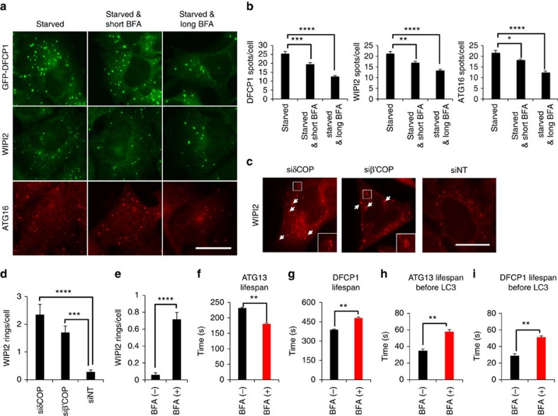 COPI complex promotes elongation of autophagosomes. ( a ) HEK293 cells stably expressing GFP-DFCP1 or the parental cell line were pre-treated for 3 h with 3 μg ml −1 BFA (long BFA), starved for 1 h in the presence of BFA and the parental cell line was immunolabelled for WIPI2 or ATG16. Cells were imaged by wide-field microscopy. Short BFA corresponds to non-pre-treated cells. Bar corresponds to 10 μm. ( b ) Values are means±s.e.m. of DFCP1, WIPI2 and ATG16 spots per cell in a , from at least six fields with 5–10 cells each. ( c ) HEK293 cells were transfected with δCOP (siδCOP), β'COP (siβ'COP) or non-targeted (siNT) siRNA, starved, immunolabelled for WIPI2 and imaged by wide-field microscopy. Arrows point at WIPI2 ring-like structures. Bar corresponds to 10 μm. ( d ) Values are means±s.e.m. of WIPI2 rings per cell in c , for 10 different fields with 5–15 cells each. ( e ) HEK293 cells were pre-treated for 3 h with 3 μg ml −1 BFA, starved, immunolabelled for WIPI2 and imaged by wide-field microscopy. Values are means±s.e.m. of WIPI2 rings per cell, for 10 different fields with 5–15 cells each. ( f , g ) HEK293 cells stably expressing <t>GFP-ATG13</t> ( f ) or GFP-DFCP1 ( g ) were pre-treated for 3 h with 3 μg ml −1 BFA, starved and live-imaged in the presence of BFA by wide-field microscopy. The lifespan of ATG13 and DFCP1 particles was quantitated. Values are means±s.e.m. of ATG13 or DFCP1 particle lifespan, from 60 and 30 montages, respectively. ( h , i ) HEK293 cells expressing stably GFP-ATG13 ( h ) or GFP-DFCP1 ( i ) and transiently CFP-LC3 were pre-treated for 3 h with 3 μg ml −1 BFA, starved and live-imaged in the presence of BFA by wide-field microscopy. The lifespan of ATG13 and DFCP1 particles before the appearance of LC3 was quantitated. Values are means±s.e.m. of ATG13 or DFCP1 particle lifespan before the appearance of LC3, from 20 and 26 montages, respectively. Significance levels were determined with unpaired t -tests. * P =0.05%; ** P =0.01%; *** P =