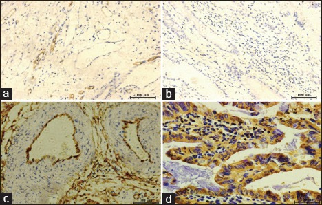 Expression of CD34 and VEGF in perioperative hemorrhage in gastric cancer patients and normal individuals via immunohistochemical staining. Expression of CD34 (a and c) in normal tissue and gastric cancer tissue, respectively; and expression of VEGF (b and d) in normal tissue and gastric cancer tissue, respectively (original magnification, ×200). VEGF: Vascular endothelial growth factor; CD34: Cluster of differentiation 34.