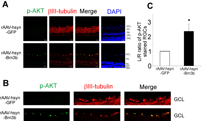 Transcription factor Brn3b promoted an increase in the levels of <t>p-AKT</t> in retinas of rats injected with rAAV-hSyn-Brn3b. A : Immunostaining for p-AKT (pseudogreen), βIII-tubulin (pseudored) expression in retinal sections from Brown Norway rats intravitreally injected with either the recombinant adenoassociated virus–hSyn–green fluorescent protein <t>(rAAV-hSyn-GFP;</t> vector control) or rAAV-hSyn-Brn3b virus. The immunostaining was detected using corresponding Alexa 546 (pseudogreen) or Alexa 647 (pseudored) conjugated secondary antibody. Scale bar indicates 20 µm. B : A magnified view of the retinal ganglion cell (RGC) layers of retinas transduced with either rAAV-hSyn-GFP or rAAV-hSyn-Brn3b. C : A significant 2.4-fold increase in p-AKT expression was observed in the RGCs of rats injected with rAAV-hSyn-Brn3b. Ratios of fluorescence intensity values are shown in mean ± standard error of the mean (SEM), n = 6. The Mann–Whitney rank-sum test was used for statistical analysis (*p