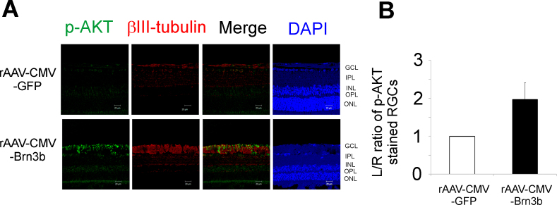 Levels of p-AKT in the retinas of rats with elevated IOP overexpressing Brn3b. A : Immunostaining for p-AKT in retinal ganglion cells (RGCs) of Brown Norway rats intravitreally injected with either the recombinant adenoassociated virus–cytomegalovirus–green fluorescent protein (rAAV-CMV-GFP) or rAAV-CMV-Brn3b following intraocular pressure (IOP) elevation. Retinal sections obtained were immunostained for p-AKT (pseudogreen) and βIII-tubulin (pseudored). B : An increase in immunostaining (not statistically significant) for p-AKT was observed in RGCs overexpressing Brn3b (rAAV-CMV-Brn3b) compared to RGCs overexpressing the control vector (rAAV-CMV-GFP; determined with the L/R ratios of fluorescence intensities of p-AKT staining in RGCs). Values are represented as mean ± standard error of the mean (SEM), n = 3. Scale bar indicates 20 µm.