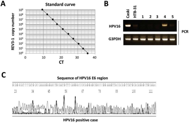 Detection of HPV16 by PCR. (A) Standard curve indicating CT value vs. ERV3-1 copy number. A standard curve was calculated by plotting obtained CT values against serial 10-fold dilutions produced with ERV3-1 copy numbers ranging from 100 to 109. (B) Agarose gel electrophoresis of amplified PCR products from cell lines and oral samples. Ten microliters of each 20-μl PCR product were separated on a 3.0% agarose gel. HPV16 DNA was detected in Caski cells (HPV16 positive), but not in HTB-31 cells (HPV negative). Lanes: 1-5, oral rinse samples (C) PCR products were examined by sequencing for the HPV16 E6 region