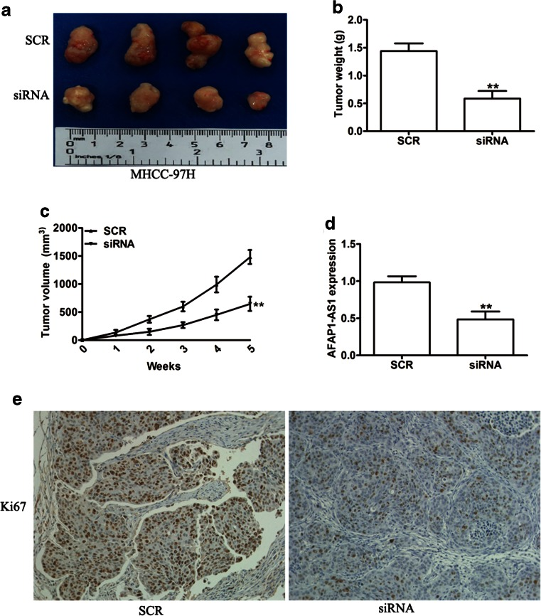 AFAP1-AS1 silencing inhibited tumor growth in a xenograft mouse model. a Representative photographs of tumors are shown. Tumor weight b and tumor growth curves c in mice are shown for MHCC-97H cells transduced with SCR or siAFAP1-AS1. d qRT-PCR was used to detect the average expression of AFAP1-AS1 in xenograft tumors. e Representative images of IHC staining showed the expression of Ki67 in xenograft tumor tissues from the siAFAP1-AS1 group or SCR group. ** P