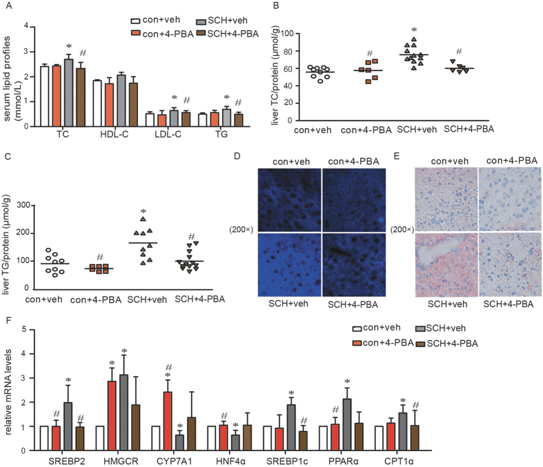 Treatment with 4-PBA alleviated lipid metabolic disorders in SCH mice. (A) Levels of triglycerides (TG), total cholesterol (TC), high-density lipoprotein (HDL) and low-density lipoprotein (LDL) in the serum of all mice were determined after 4-PBA was administered for 4 weeks (n = 6–12). (B) Hepatic TC contents were detected using a cholesterol assay kit after 4-PBA was administered for 4 weeks (n = 6–12). (C) Hepatic TG contents were detected using a triglyceride assay kit after 4-PBA was administered for 4 weeks (n = 6–13). (D) Filipin staining was used to measure hepatic cholesterol deposition after 4-PBA was administered for 4 weeks (n = 3). Original magnification: 200×. (E) Oil red O staining was used to measure hepatic TG accumulation after 4-PBA was administered for 4 weeks (n = 3). Original magnification: 200×. (F) Real-time PCR analysis of different lipid metabolism-related genes in the liver was performed in the 18th week (n = 4–6). The data are presented as the mean ± SD. *p