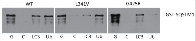 ALS-FTLD-associated SQSTM1 mutations impact on the recognition of LC3B (SQSTM1 L341V ) or ubiquitin (SQSTM1 <t>G425R</t> ) in vitro. Mutations as indicated (or wild type, WT) were introduced into the full-length <t>GST-SQSTM1</t> sequence and affinity isolation assays (LC3B and ubiquitin on beads) were performed at 37°C. Bacterial lysates containing the GST-SQSTM1 fusions were incubated with glutathione- (G), control- (C), LC3B (LC3), and ubiquitin-Sepharose (Ub) beads and captured proteins were detected by western blotting (anti-SQSTM1 antibodies). A representative blot is shown; see Fig. S1 for quantification of 3 independent experiments.