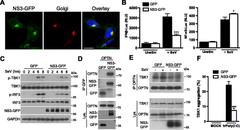 OPTN is targeted by the NS3 protein of the Bluetongue virus to dampen IRF3 signaling. a HeLa cells were transfected with a plasmid encoding NS3-GFP; 16 h later, the NS3-GFP localization was assessed by immunofluorescence analysis. The Golgi apparatus was stained with an antibody against GM130. Scale bars, 10 μm. b HEK293T cells were transfected with either an IFNβ promoter reporter or with a NF-κB reporter, together with the Renilla luciferase gene as an internal control. In parallel, the cells were also transfected with a plasmid encoding GFP or NS3-GFP. Then, 16 h after transfection, cells were either left unstimulated (Unstim) or infected with Sendai virus (+ SeV) for 7 h. Luciferase assays were then performed and the results were normalized against Renilla luciferase activity. The data shown are means ± SD from three independent experiments (analysis of variance and comparison with GFP-transfected cells in Student's t test). RLU, relative luminescence units. c HEK293T cells were transfected with a plasmid encoding GFP or NS3-GFP. Then, 16 h after transfection, cells were infected with SeV for the indicated times. Cell lysates were analyzed by immunoblotting with antibodies against the indicated proteins. d HEK293T cells were transfected with a plasmid encoding OPTN and a plasmid encoding GFP or NS3-GFP. Then, 16 h after transfection, cell lysates (Lys.) were subjected to immunoprecipitation (IP) with an antibody against GFP. Samples were analyzed by immunoblotting with antibodies against the indicated proteins. e HEK293T cells were transfected with a plasmid encoding GFP or NS3-GFP. Then, 16 h after transfection, cells were either left unstimulated or infected with Sendai virus for 7 h. Cell lysates (Lys.) were then subjected to immunoprecipitation (IP) with an antibody against OPTN. Samples were analyzed by immunoblotting with antibodies against the indicated proteins. f MEFs were transfected with a plasmid encoding GFP or NS3-GFP. Then, 16 h after transfection