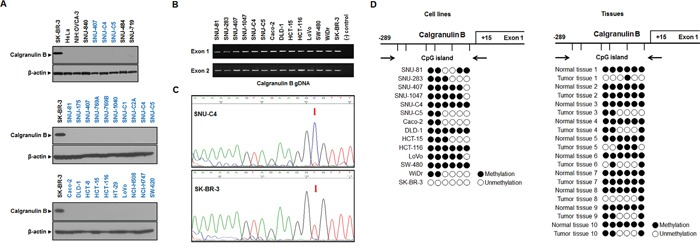 Calgranulin B expression and promoter methylation status in colon cancer cell lines A. Calgranulin B was not detected by western blot in colon cancer, gastric cancer, ovarian cancer or cervical cancer cell lines. Only breast cancer cells showed positive calgranulin B protein expression. B. gDNA PCR analysis revealed that colon cancer and breast cancer cells carry genes for calgranulin B expression. C. Representative DNA sequencing analysis diagrams in SNU-C4 (top, methylated) and SK-BR-3 (bottom, unmethylated) cell lines. D. Analysis of calgranulin B promoter CpG island methylation status based on bisulfite sequencing. The distribution of calgranulin B gene CpG dinucleotides is shown, along with DNA sequencing analysis of six promoter CpG dinucleotides. Promoter CpG dinucleotides were mostly methylated in the 13 colon cancer cell lines tested (left panel). Calgranulin B gene methylation was also analyzed in 10 patient tumors with paired normal tissues (right panel). Six promoter CpG islands were completely methylated in all normal tissues, and all tumor tissues showed at least one methylation site. Circle: CpG dinucleotides; closed circle: methylation; open circle: no methylation.