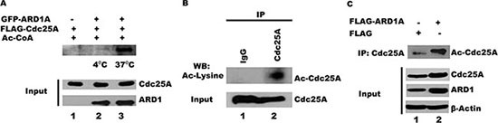 ARD1 acetylates Cdc25A in vitro and in cells ( A ) ARD1 mediates Cdc25A acetylation in vitro . Purified GFP-ARD1A was incubated at 4°C, or 37°C, with purified FLAG-Cdc25A. The reactions were analyzed using anti-acetyl lysine antibody, followed by chemiluminescent detection. ( B ) Cdc25A is endogenously acetylated. Cdc25A was immunoprecipitated from HEK 293T cell lysates and its acetylation status was analyzed by Western blot using an acetyl-specific antibody. ( C ) ARD1 overexpression increases Cdc25A acetylation in cells. Cdc25A was immunoprecipitated from HEK 293T cell lysates transfected with FLAG-ARD1A and the Cdc25A acetylation status was analyzed by Western blot using an antibody specific for acetylated lysines.