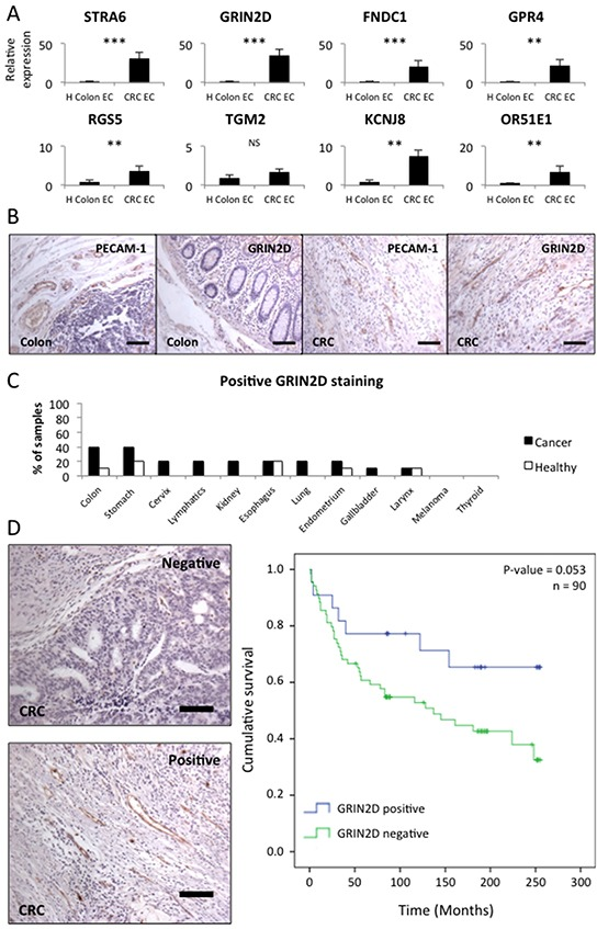GRIN2D is a specific marker of tumour vasculature in colorectal cancer A. quantitative real-time analysis of relative candidate target gene levels in endothelium isolated from malignant and healthy tissue. Gene expression levels were normalised to flotillin-2. Average gene expression ± SEM (n=8, Mann-Whitney U, *** p