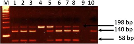 Amplified DNA digested with SfaNI showing genotypes of IL-6(174G/C). Lane M: 100 bp DNA marker, Lane 1, 2, 3,5,6,7 and 8 for genotype GC (3 bands of 198, 140 and 58 bp), Lane 4 for genotype CC (uncut DNA of 198 bp), Lane 10 for genotype GG (2 bands of 140 and 58 bp)