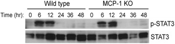 MCP-1 is not required for STAT3 activation during liver regeneration. Western blot analysis of STAT3 and phosphorylated- STAT3 proteins in the regenerating liver of wild type and MCP-1 knockout mice at the indicated times after PH (20 μg protein/lane)