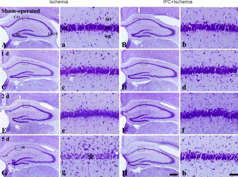Cresyl violet (CV) staining in the hippocampus of gerbils from the sham-operated (A, a), IPC + sham-operated (B, b), ischemia (C, c, E, e, G, g) and IPC + ischemia (D, d, F, f, H, h) groups. In the ischemia group, a few CV-positive cells were found in the hippocampal CA1 stratum pyramidale (asterisk) only 5 days after transient forebrain ischemia. However, the distribution pattern of CV-positive cells in the IPC + ischemia group was similar to that in the sham-operated group. IPC: Ischemic preconditioning; CA: cornus ammonis; DG: dentate gyrus; SO: stratum oriens; SR: stratum radiatum. Scale bars: 200 μm (low magnification, A–H), 60 μm (a–h: high magnification of boxes in A–H).