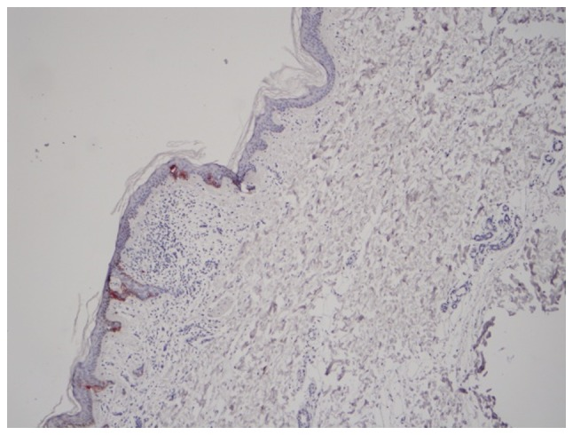 <t>HMB-45</t> expression in normal Langerhans cells without skin damage caused by melanoma (magnification, ×400).