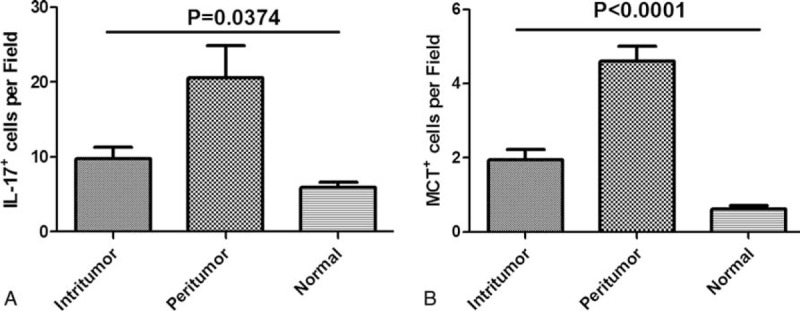 Distribution of IL-17 + cells, MCT + mast cells. Both IL-17 + cells (A) and MCT + mast cells (B) were significantly increased in peritumor, followed by intratumor and normal. IL-17 = interleukin-17, MCT + = mast cell tryptase + .