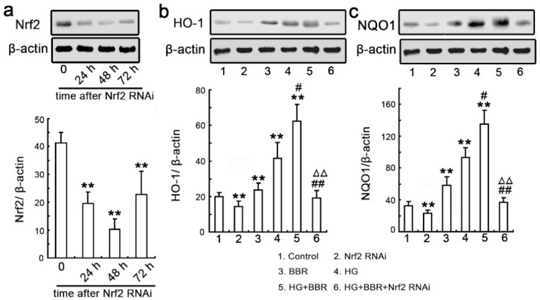siRNA knockdown of Nrf2 abrogates BBR-induced NQO1 and HO-1 expression. ( a ) NRK-52E cells were transfected with Nrf2-siRNA and western blot analysis was performed with an antibody against Nrf2 was performed at various time-points following transfection (24, 48 and 72 h). Relative Nrf2 expression levels were calculated and normalized to the loading control. Corresponding protein levels were assessed using densitometry and expressed in relative intensities. All results were obtained from three independent experiments. Values are expressed as the mean ± SEM ( n = 6; ** p