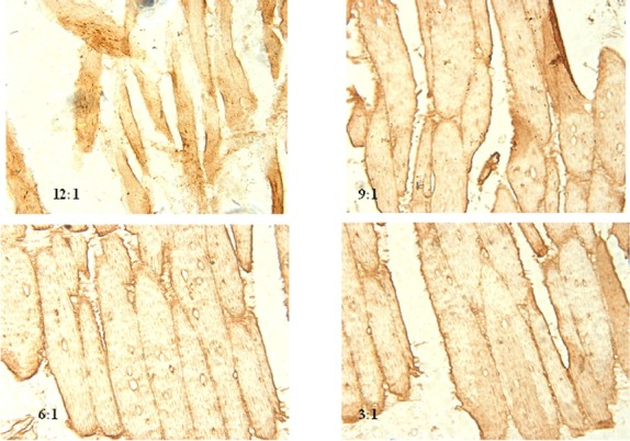 The gene expression of LDL-R in the leg muscle measured by in situ hybridization. Five to ten slides for each tissue were prepared, and images were taken using binocular microscope (Olympus BX5; Olympus, Japan) coupled to a digital camera (Nikon H550L, Japan). The four images shown in Figure 2 were all magnified 400. Figure 2 shows that the positive rates of LDL-R expression between the different groups had a tendency to decrease with decreasing ω-6/ω-3 polyunsaturated fatty acid ratios (data shown in Table 2 ).