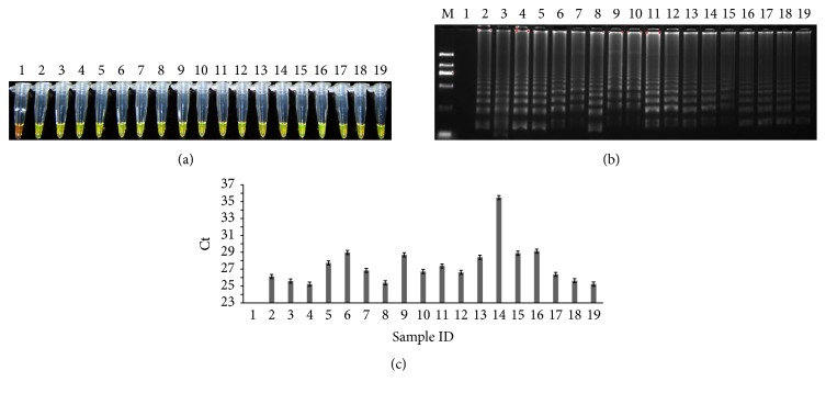 Detection of tobacco components in different tobaccocultivars. (a) LAMP method through direct visual detection with <t>SYBR</t> Green I; (b) LAMP method on 2% agarose gel electrophoresis analysis; (c) qPCR method. Lane 1 : NTC; lane 2 : PTC; lanes 3–17 : 15 tobacco samples of different cured tobacco varieties; lanes 18-19 : two fresh tobacco samples; lane M : Trans 2K DNA marker. Ct was expressed as mean Ct ± SD from 3 independent experiments with three replications.