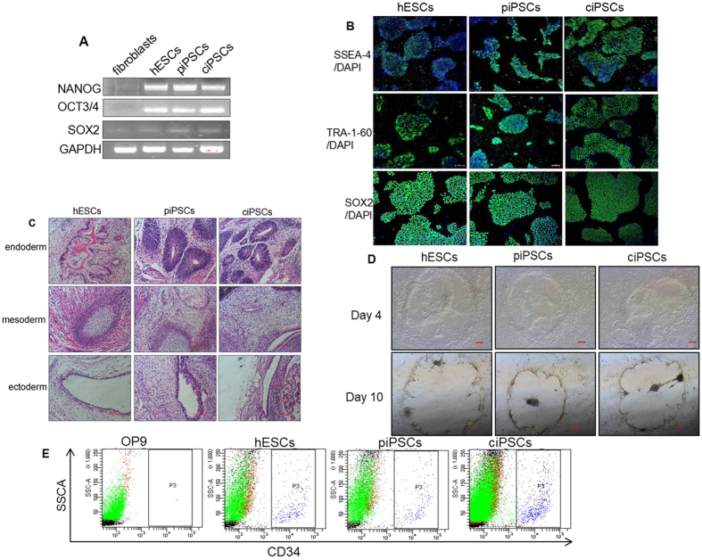 Pluripotent stem cell features of ciPSCs and differentiation in vivo . ( A ) RT-PCR analysis of the expression of undifferentiated pluripotent marker genes in ciPSCs. ( B ) Immunostaining of iPS cells for cell surface markers, including SSEA-4, TRA-1-60, and SOX2, scale bar, 20 μm. ( C ) Teratomas that formed eight weeks after injection of iPSCs contained tissues from all three types of germ layers (endoderm, mesoderm, and ectoderm). Scale bars, 100 μm. ( D ) Morphologies of the HSCs of cell lines co-cultured with OP9 stromal cells. ( E ) Flow cytometry analysis results confirm HSC formation in vitro .