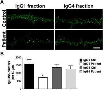 IgLON5 IgG1, but not IgG4 antibodies, cause a reduction of surface IgLON5 clusters. a Hippocampal neurons were treated for 3 days with IgG1 or IgG4 fractions from control serum or from a patient with IgLON5 antibodies and immunostained for surface antibody-bound IgLON5. Scale bar = 5 μm. b Quantification of IgLON5 clusters. IgLON5 clusters were significantly reduced after treatment with patient IgG1 compared with control IgG1 or patient and control IgG4. * p