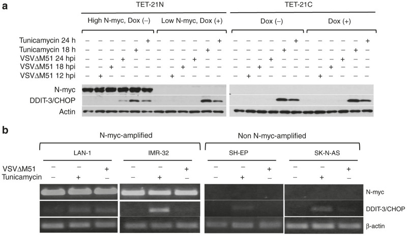 Differential expression of DDIT-3. ( a ) TET21 cells were either treated or not with doxycycline for 48 hours and infected with VSVΔM51 at multiplicity of infection (MOI) of 0.5 for 12, 18, and 24 hours. Alternatively, cells were treated with 1 μg/ml tunicamycin (an ER poison) as controls for DDIT-3/CHOP expression. Expression of DDIT-3/CHOP was analyzed by western blot ( a ). NB cell lines were either infected at MOI of 0.1 or treated with tunicamycin for 15 hours. RNA was extracted and the expression of DDIT-3/CHOP was analyzed by RT-PCR ( b ). Dox (-), no doxycycline added. Dox (+), doxycycline added.
