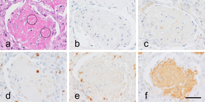 Immunohistochemical observation of NETs and fibrin markers in clustered thick fibrils in lobar pneumonia. HE ( a ), Cit-H3 ( b ), LF ( c ), MPO ( d ), NE ( e ) and FGG ( f ). Clustered thick fibrils seen in lobar pneumonia solely exhibit immunoreactivity of FGG ( f ). Neutrophils are scarcely seen among the deposit. Dotted circles represent HE-stained clustered thick fibrils. Bar=50 μm.