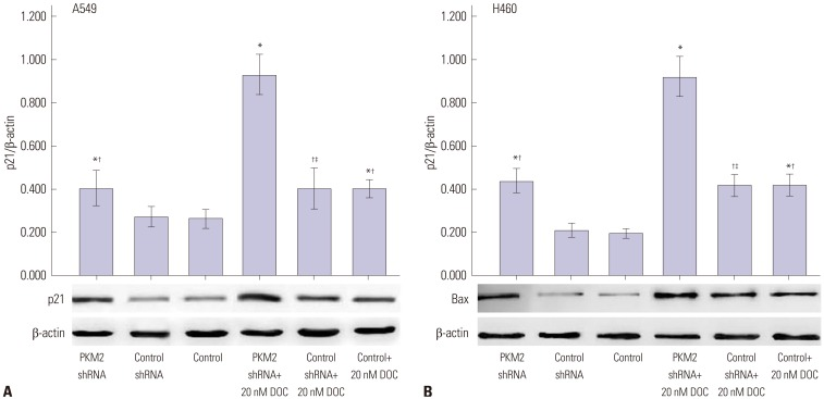 p21 protein expression induced by 0 nM and 20 nM docetaxel in PKM2-shRNA transfected, shRNA-control transfected or non-transfected cells at 48 hrs. 48 hrs after transfection, all A549 (A) and H460 (B) cells, PKM2 shRNA-transfected (PKM2 shRNA), control-shRNA transfected (Control shRNA) or non-transfected (Control), were incubated with 20 nM docetaxel for up to 48 hrs, Western blot analyses were performed to detect the expression of p21. The graph depicts mean±SEM for three independent determinations of optical density of the p21 Western blot bands. * Compared to control cells with incubation of 0 nM docetaxel, p