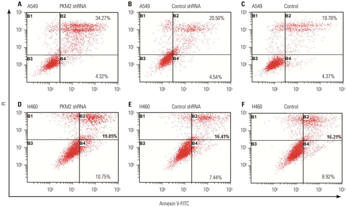 Representative analysis of apoptosis induced by 20 nM docetaxel in PKM2-shRNA transfected, shRNA-control transfected or non-transfected cells at 48 hrs. 48 hrs after transfection, all A549 and H460 cells, PKM2 shRNA-transfected (PKM2 shRNA), control-shRNA transfected (Control shRNA) or non-transfected (Control), were incubated with 20 nM docetaxel for up to 48 hrs, and apoptosis was evaluated using Annexin V-FITC/PI staining and flow cytometry analysis. (A) PKM2-shRNA transfected A549 cells treated with 20 nM DOC. (B) shRNA-control transfected A549 cells treated with 20 nM DOC. (C) Non-transfected A549 cells treated with 20 nM DOC. (D) PKM2-shRNA transfected H460 cells treated with 20 nM DOC. (E) shRNA-control transfected H460 cells treated with 20 nM DOC. (F) Non-transfected H460 cells treated with 20 nM DOC. Bottom right quadrant; cells stained mainly by Annexin V (early apoptotic cells); top right quadrant, cells stained by both PI and Annexin V (late apopototic cells); top left quadrant, cells stained mainly by PI (necrotic cells); bottom left quadrant, cells negative for both Annexin V and PI. PKM2, the M2 isoform of pyruvate kinase; PI, propidium iodide.