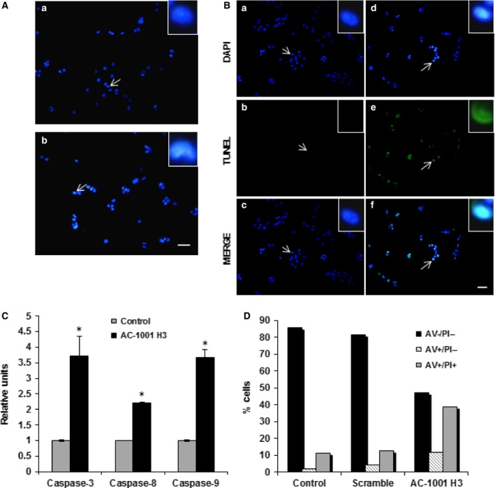 AC ‐1001 H3 induces apoptosis. B16F10‐Nex2 cells were treated with AC ‐1001 H3 (0.35 m m ) and examined for apoptosis hallmarks. (A) Untreated (a) and treated (b) cells were stained with Hoechst 33342. Chromatin condensation was observed in treated cells (arrows indicate cells highlighted in inserts, zoom 700%). Bar, 100 μm. (B) TUNEL assay showing DNA degradation in treated cells (d–f) as compared to untreated cells (a–c); arrows indicate cells highlighted in inserts, zoom (700%). Bar, 100 μm. (C) Caspase‐3, ‐8 and ‐9 activation after peptide treatment, * P