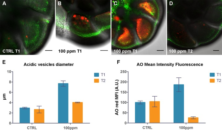 Effect of Hg exposure on acidic compartmentalization of A . parkinsoniana labeled with AO. <t>Epifluorescence</t> micrographs of single optical sections showing overlay of AO green and red fluorescence for (A) T1-control, (B,C) T1-100 ppm, and (D) T2-100 ppm, Bars: 20μm. (E) Histogram of maximum dimension (diameter) of acidic vesicles. (F) Histogram of red Mean Fluorescence Intensity (MFI) expressed in arbitrary units (A.U.) for control and 100 ppm at both T1 and T2. Error bars indicate ± standard error of the mean.