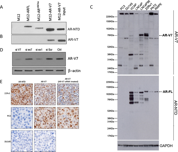 EP343 identifies the AR-V7 splice variant. <t>Immunoprecipitation</t> (IP) of M12 cells stably transfected with PCDNA3 plasmid expressing 3×FLAG-tagged cDNAs encoding either AR-FL, ARv567es, or AR-V7. Following IP of cell lysates with a FLAG antibody, blots were probed for (A) AR-NTD or (B) AR-V7 to determine the specificity of the EP343 antibody. (C) Immunoblot staining of various prostate cancer cell lines, both positive and negative for AR-V7 and AR-FL, shows AR-V7 staining (top arrow) along with a number of nonspecific bands and AR-FL (bottom arrow). (D) LNCaP95s were transfected with siRNAs targeting either cryptic exon 3B (si V7), exon 7 (si ex7), exon 1 (si ex1), scrambled SiRNA (si SCR), or an input control. Note that siRNAs directed at components of AR-V7 (si V7 and si ex 1) reduced EP343 staining, but siRNA directed at exon 7 had no effect. (E) IHC on 22Rv1 (positive for AR-NTD and AR-V7), DU145 (negative for AR-NTD and AR-V7) and PC3s which are negative for AR-NTD and should be negative for AR-V7 but have obvious EP343 staining. Both PC3 and 22Rv1 were transfected w ith AR-V7 (cryptic exon 3B) siRNA and then pelleted for EP343 IHC staining. The targeted siRNA reduced AR-V7 in 22Rv1 IHC but not in PC3.