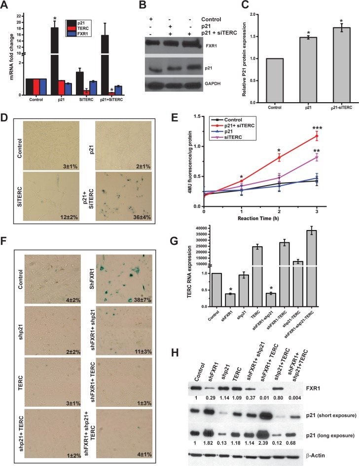 FXR1 involves both <t>p21</t> and TERC RNA to promote senescence. (A) qRT-PCR analyses of RNA levels of UMSCC74B cells transfected with single or combination of p21 overexpression plasmid or si TERC RNA. GAPDH serves as a loading control. (B) Immunoblot of protein expression levels of FXR1 and p21 in UMSCC74B cells transfected independently o r together with p21 overexpression plasmid or si TERC . GAPDH serves as a loading control. (C) Quantification of the western blot shown in Fig 6B. (D) Staining of SA-β-gal in UMSCC74B cells transfected independently or together with p21 overexpression plasmid or si TERC . (E) Quantitative values of MUG conversion to 4-MU by senescence associated β-galactosidase for Fig 6D. (F) SA-β-gal staining of shControl and shFXR1 treated UMSCC74B cells, also co-transduced and/or co-transfected together or independently with shp21 or TERC overexpression plasmid. (G) qRT-PCR analyses of TERC RNA levels in shControl and shFXR1 treated UMSCC74B cells also co-transduced and/or co-transfected together or independently with shp21 or TERC overexpression plasmid. GAPDH serves as a loading control (n = 2). Statistical significance for TERC overexpressing cells from a plasmid-borne copy is not calculated. (H) Immunoblot of protein expression levels of FXR1 and p21 in shControl and shFXR1 treated UMSCC74B cells also co-transduced and/or co-transfected together or independently with shp21 or TERC overexpression plasmid. β-Actin serves as a loading control. (* p