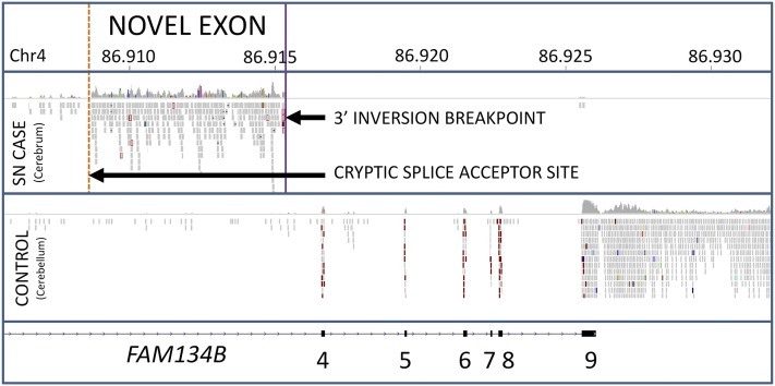 Example of novel exon formation through cryptic splicing. An example of a novel exon occurring before an inversion breakpoint due to a cryptic splicing event. The novel splice acceptor site is located upstream of inversion breakpoint. Two further novel splice acceptor sites are located within the inverted region. Transcription of exons 4 to 9 of FAM134B is abolished in the SN case due to relocation of exons 1 to 3 through the inversion event. Note: The control RNAseq dataset is from cerebellum and is shown to illustrate a normal FAM134B splicing pattern. The choice of control tissue was based on availability. Chr4, chromosome 4; RNAseq, RNA sequencing; SN, sensory neuropathy