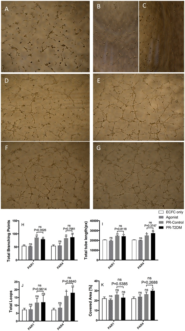 Platelet releasates enhance tube formation of ECFCs. ECFCs (1×10 4 ) suspended in EBM-2 basal medium with 0.5% FBS were seeded onto Matrigel-coated wells of a 96-well plate, and incubated at 37°C for 6 h in presence of vehicle (panel A), 8 μM PAR1-AP (B), 10 μM PAR4-AP (C), 10% PAR1-PR (D and F), or10% PAR4-PR (E and G) of non-diabetic (D and E) and T2DM subjects (F and G). ECFC tube formation was observed and fotographed using an Olympus CKX41 inverted light microscope equipped with a Nikon D5100 camera. The tube formation images were subjected to WimTube tube formation image analysis. Total branch points (H) and total tube length (I) of ECFC tube formation are plotted as mean±SEM; n = 5. *P