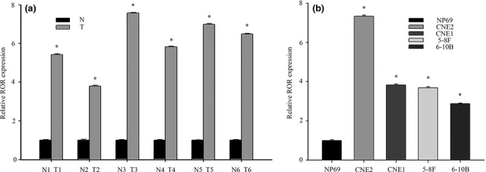 Aberrant expression of lnc RNA ‐ ROR in human nasopharyngeal carcinoma ( NPC ) tissue samples and cell lines. (a) The expression levels of lnc RNA ‐ ROR in NPC and non‐cancer tissue were measured by qRT ‐ PCR . T (human NPC tissues), N (non‐cancer tissue). (b) qRT ‐ PCR assays for lnc RNA ‐ ROR expression in NPC cell lines ( CNE 2, CNE 1, 5‐8F and 6‐10B). Relative levels compared with the nasopharyngeal epithelia cell NP 69 for qRT ‐ PCR . Data are mean ± SE . * P