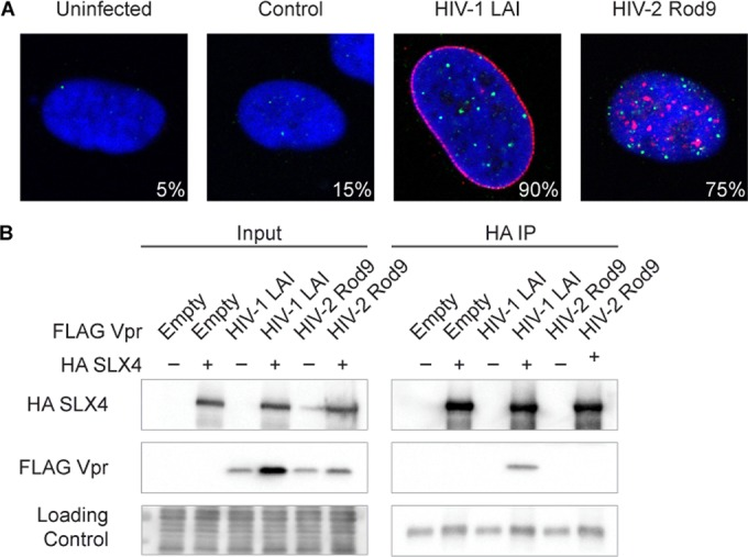 HIV-1 and HIV-2 Vpr differentially engage the host DNA damage response. (A) Representative immunofluorescence images of U2OS cells expressing 3× FLAG-tagged Vpr, control empty vector (no Vpr), or uninfected cells. FANCD2 foci show activation of the DNA damage response. Blue (DAPI) shows the nuclei, 3× FLAG Vpr is shown in red, and FANCD2 is shown in green. Values indicate percentages of FANCD2-positive cells (more than 6 FANCD2 foci) that were also Vpr positive. For negative controls, values are simply the percentages of FANCD2-positive cells in the entire field ( n = > 15). (B) HA-tagged human SLX4 and FLAG-tagged Vpr were transiently coexpressed in 293T cells (left panels), and immunoprecipitations against the HA tag were performed (right panels). The loading control was either whole-cell stain (Input) or IgG heavy chain (HA IP) (note that there is a small amount of sample spillover in the HIV-2 Rod9-negative SLX4 input lane from the adjacent lane). See Fig. S1 in the supplemental material for related data.