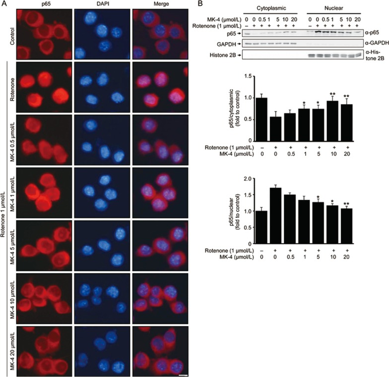 MK-4 inhibits rotenone-induced nuclear accumulation of the NF-κB p65 subunit in BV2 cells. (A) Various doses of MK-4 and 1 μmol/L rotenone were administered to BV2 cells as indicated for 6 h. The cells were fixed and labeled with anti-p65 (red) antibodies. Then, the cells were visualized under a fluorescent microscope. The nuclei were stained with DAPI (1 μg/mL) (blue). Scale bars, 5 μm. (B) The cytoplasmic and nuclear fractions from the treated BV2 cells were immunoblotted with anti-p65, anti-GAPDH or anti-histone 2B antibodies. The band intensities of p65 relative to that of GAPDH (cytoplasmic fraction) or <t>histone</t> 2B (nuclear fraction) are shown in the lower two panels. The value of the group without drug (dissolvent only) is normalized as 1. The data are presented as the mean±SEM from three independent experiments. * P