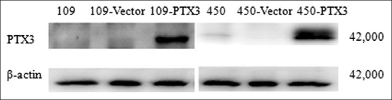 Western blotting analysis of PTX3 expression after transfection. Expression of PTX3 in wild-type, vector-expressing, and PTX3-expressing stably transfected EC109 and KYSE-450 cells. β-actin was used as an endogenous control. PTX3: Pentraxin-3.