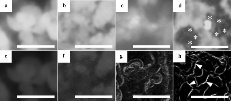 Fluorescence microscopic observation of FD-incorporated HepG2 cells at day 3 in each culture method. The cells were cultured on the liquid–liquid interface using a control Millicell chamber with a 1.0 µm-porous PET membrane ( a , e ), the liquid–solid ( b , f ), liquid–liquid ( c , g ) and liquid–gas ( d , h ) interfaces using CVM chambers. To assay the ADME of FD, the metabolized fluorescein at 10 min ( a – d ) and 60 min ( e – h ) after incorporating FD into the cells was observed under the same visual field in each culture system. Asterisks indicate the cells expressing the fluorescence in the interstices between the neighboring cells rather than inside the cells ( d ). Arrowheads indicate the excreted fluorescein into the bile canaliculus-like networks ( h ). Scale bars represent 50 µm