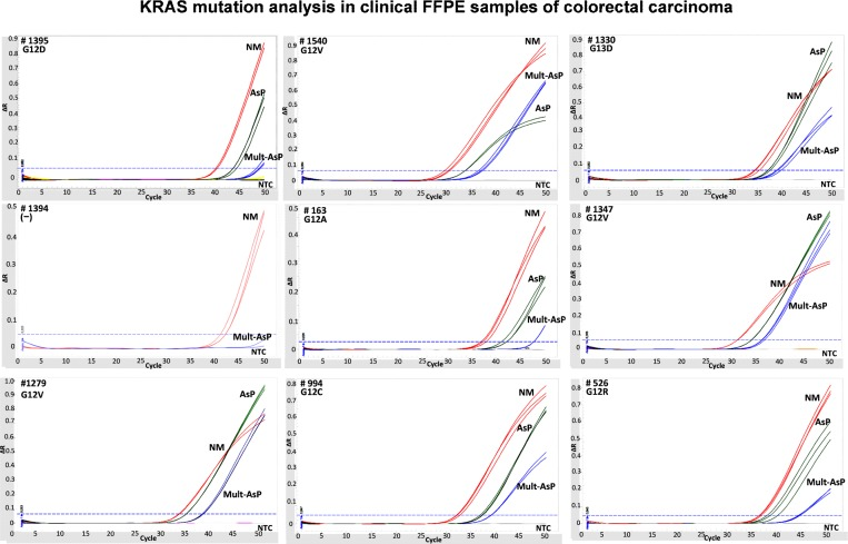 KRAS multiplex mutation analysis with colorectal carcinoma FFPE. Genomic DNA from FFPE tissues were used for AsP and Mult-AsP PCR assay. In all cases the qPCR assays contained the non-mutated reference control reaction (red line). Each DNA was amplified in AsP and Multi-AsP PCR (green and blue lines, respectively). In gray curves indicated NTC reaction.