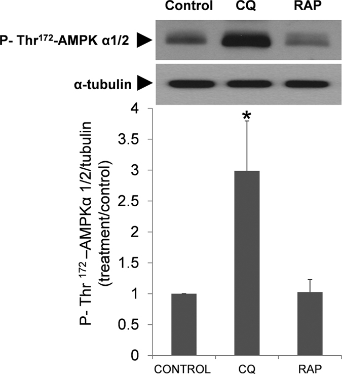 Regulation of AMPKα 1/2 phosphorylation by chloroquine and rapamycin. Spermatozoa were incubated in presence of chloroquine (50 μM) and rapamycin (100 nM). Proteins were then extracted and analyzed by immunoblotting. AMPKα 1/2 phosphorylation was studied with a phosphospecific antibody that recognized phosphorylation on Thr 172. These membranes were also incubated with tubulin for normalization. Results represent the fold-increase of P-Thr 172 -AMPKα 1/2 normalized with tubulin. Columns with asterisk indicate significant differences (P