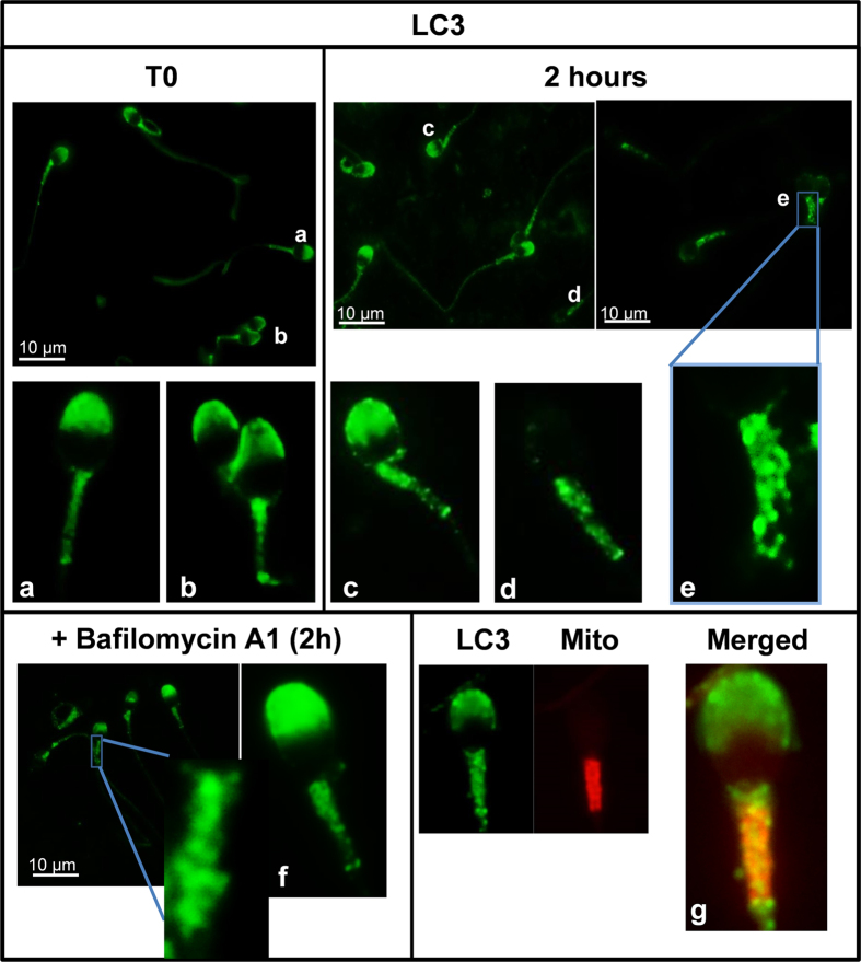 LC3-immunolocalization in fresh and incubated sperm cells. Localization of LC3 in sperm cells was performed as described in materials and methods section (indirect immunofluorescence) with anti-LC3 antibody (1/250). LC3 protein was visualized in green. Figures ( a , b) (spermatozoa from fresh samples) ( c–e) (spermatozoa after 2 hours of incubation) ( f ) (spermatozoa after 2 hours of incubation with bafilomycin A1) are representative areas digitally augmented showing the localization of LC3. Figure ( g ) shows a representative area digitally augmented from merged images of LC3 and cells stained with MitoTracker Red CMXRos. Places where both LC3 and mitochondria colocalize are observed in yellow.