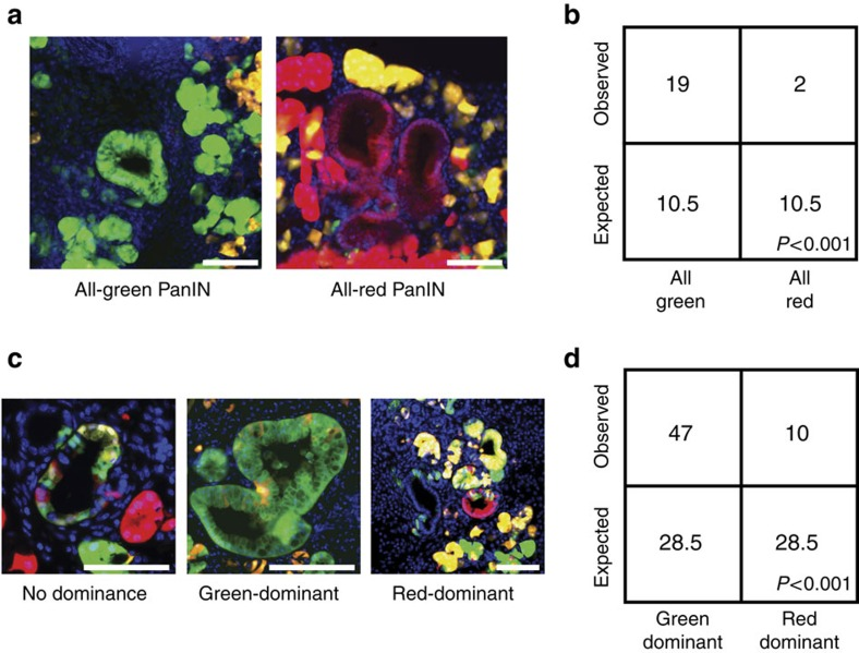 p53 loss promotes the initiation and expansion of low-grade PanINs. ( a ) Low-grade uniform colour PanINs from 6-week-old Pdx1-Cre-K-MADM-p53 mice showing p53 KO/KO (green, GFP+/tdTomato−), p53 WT/WT (red, GFP−/tdTomato+) and p53 KO/WT (yellow, GFP+/tdTomato+) cells. Representative images of all-green and all-red PanINs are shown. Blue, DAPI-stained nuclei. Scale bars, 100 μm. ( b ) Absolute quantification of observed all-green and all-red low-grade PanINs from 6-week-old Pdx1-Cre-K-MADM-p53 mice ( n =5 mice total). Expected numbers are based on 1:1 stoichiometric ratio of green and red cell generation, and were not observed ( P