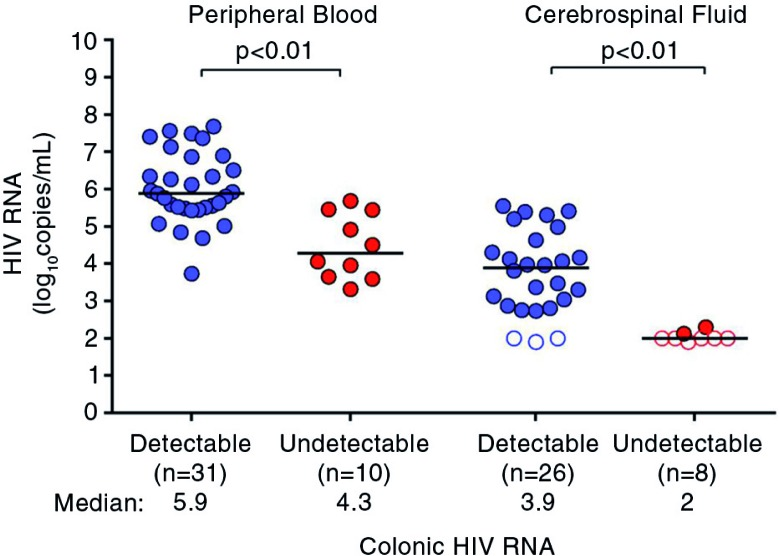 HIV RNA in the peripheral blood and cerebrospinal fluid during acute HIV infection. HIV RNA measurements during acute HIV infection are compared between participants with detectable colonic HIV RNA and undetectable colonic HIV RNA. Statistically significant pairwise comparisons ( p