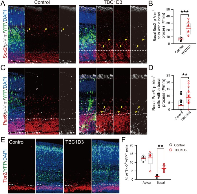 oRG-like cells and IPs increase in the basal region of TBC1D3-expressing mouse cortex. ( A and C ) Staining for phospho-Vimention (p-Vim) and Sox2 ( A ) or p-Vim and Pax6 ( C ) in E15.5 mice subjected to IUE at E13.5. Dash lines indicate the boundary between basal (outer VZ) and apical (VZ) regions in mouse neocortex. Note the cells double positive for p-Vim and Sox2 or Pax6 (yellow arrows) with the basal process with coherent patterned intermittent p-Vim signals. Scale bars, 50 μm. ( B and D ) Quantification for the number of p-Vim + Sox2 + (control: n = 6 mice, mean = 6.79, SEM = 1.02; TBC1D3: n = 9 mice, mean = 22.53, SEM = 2.91; p = 0.0009) or p-Vim + Pax6 + (control: n = 15 mice, mean = 3.10, SEM = 1.16; TBC1D3: n = 19 mice, mean = 8.63, SEM = 1.39; p = 0.009) cells with basal processes in the basal region of electroporated cortex per unit length along the VZ surface. ( E ) Tbr2 staining for E17.5 mouse brains, which were subjected to IUE at E13.5 with TBC1D3 or vehicle control, together with YFP. Dash lines indicate boundaries between apical (VZ) and basal (outer VZ) regions. Scale bar, 50 μm. ( F ) Quantification for the percentage of Tbr2 + cells among electroporated YFP + cells in apical (control: n = 4 mice, mean = 12.40, SEM = 0.79; TBC1D3: n= 7 mice, mean = 12.61, SEM = 2.01; p = 0.286) and basal regions (control: mean = 1.73, SEM = 0.49; TBC1D3: mean = 6.45, SEM = 0.72; p = 0.006). DOI: http://dx.doi.org/10.7554/eLife.18197.012