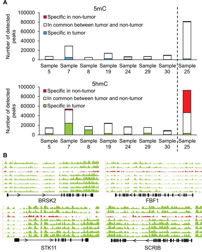 (h)MeDIP-Seq demonstrates changes in hydroxymethylation of cell polarity genes A. Immunoprecipitation of methylated and hydroxymethylated DNA followed by deep sequencing was performed on DNA isolated from the tumor and non-tumor tissues of eight patients. Sample 25 had the A1908S mutation in TET1 . B. Distribution of 5hmC densities in the gene bodies of BRSK2 , STK11 , FBF1 and SCRIB genes. The graph in red (third from top) represents the hydroxymethylation levels of sample 25 with the A1908S TET1 mutation. Scale bars were equalized across all samples.
